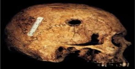 skullshoot 620380